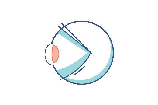 Presbiyopi sorunu olan gözün çizimi