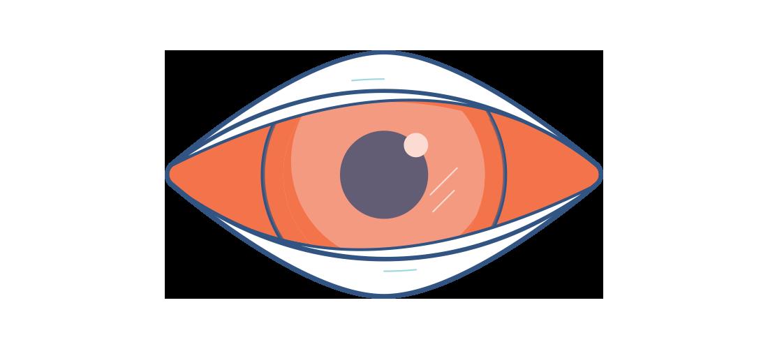 Kırmızı, hastalıklı göz çizimi
