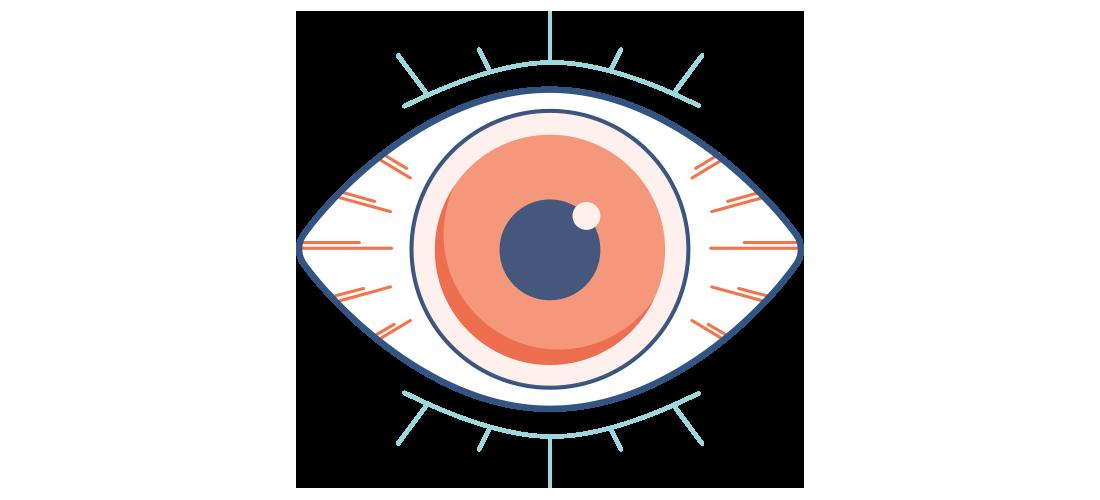 Kuru, kırmızı ve ağrılı bir göz çizimi
