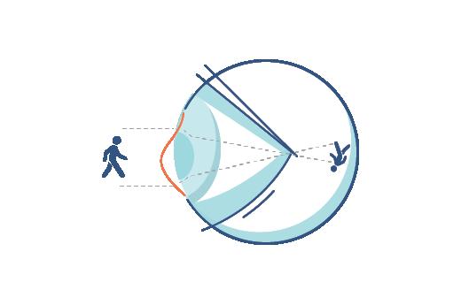 Astigmat problemi olan gözün nasıl gördüğüyle ilgili bir çizim