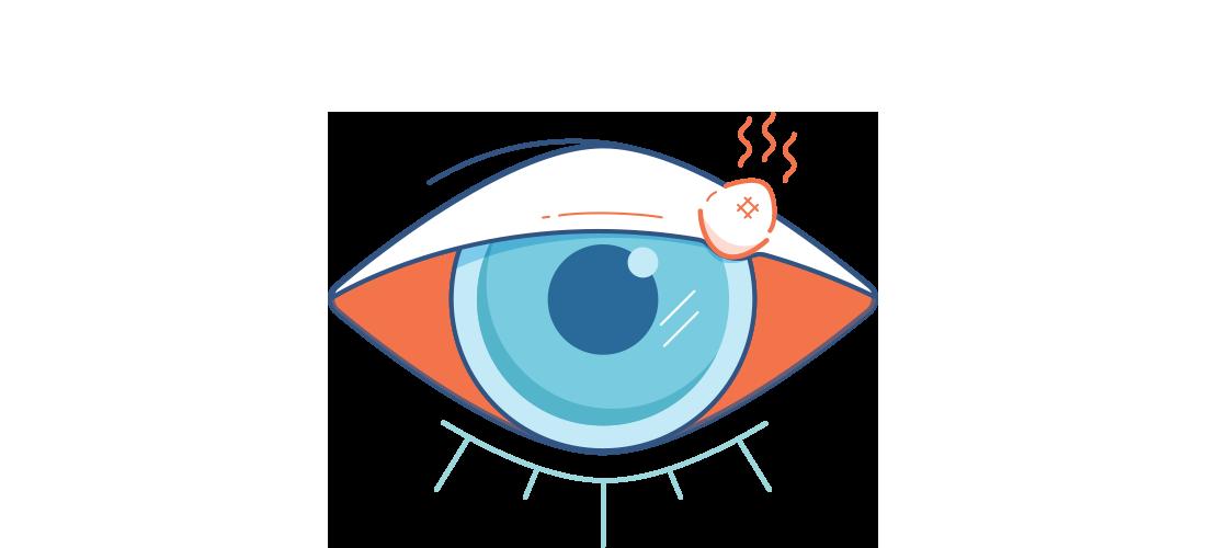 Kırmızı göz ve arpacık problemi olan göz çizimi